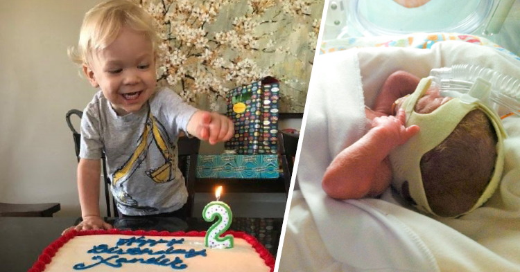 Premature child at birth and at his second birthday
